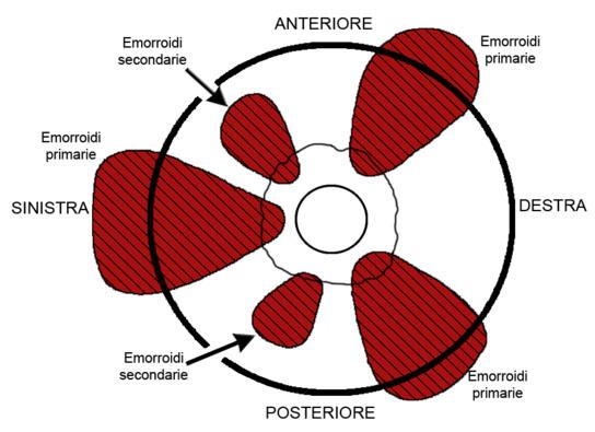 Localizzazione Emorroidi