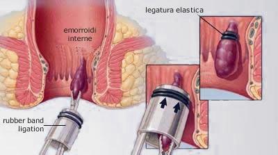 Legatura elastica - Emorroidi Esterne